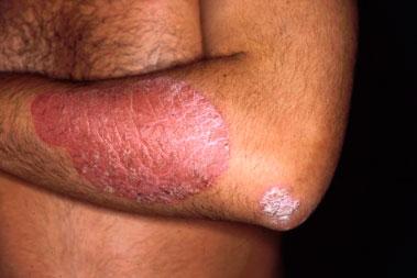 Psoriasis, mucho más que un problema de piel