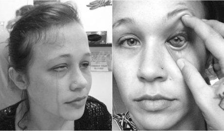 Los peligros del tatuaje ocular